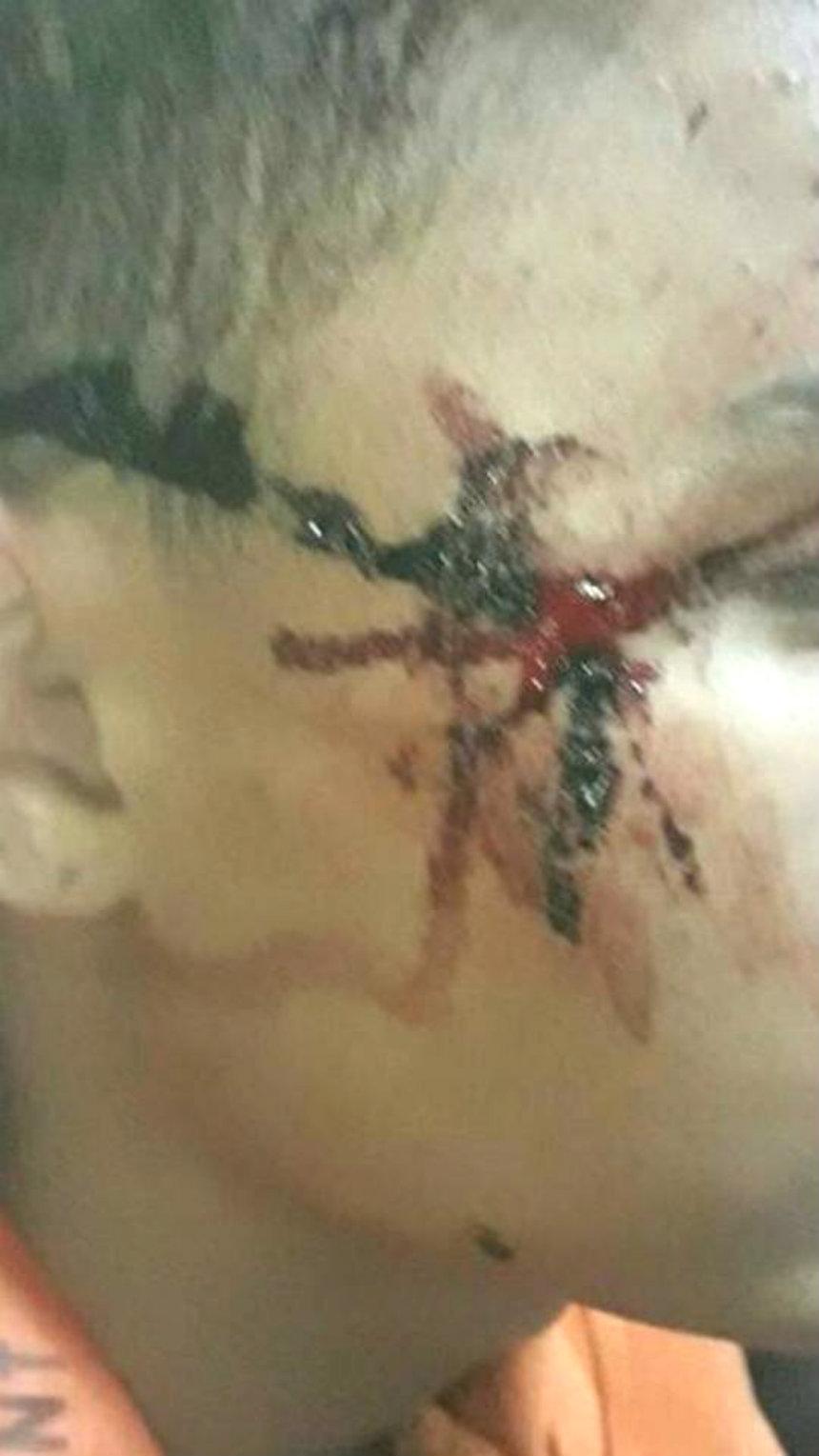 La DDI de Pergamino torturó a un chico de 14 años