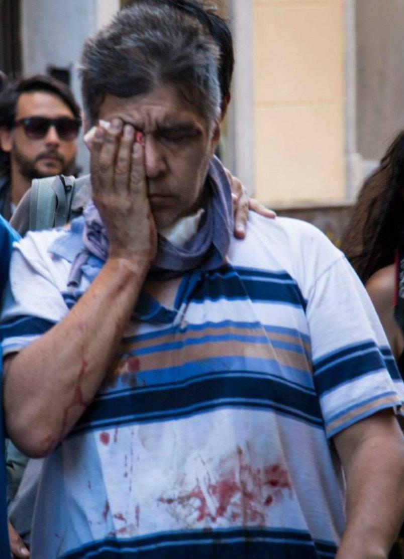 Se buscan testigos para hacer justicia por compañero baleado en un ojo durante la represión fascista de Cambiemos