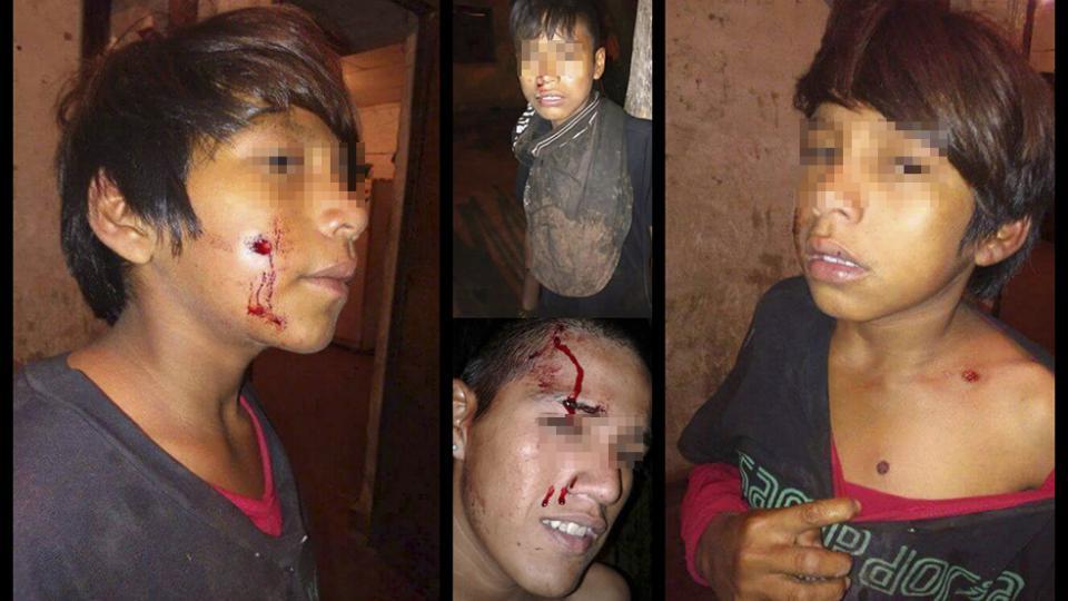 Tres pibes wichís fueron baleados por la policía formoseña
