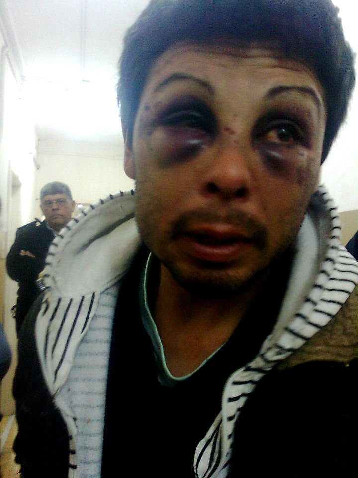 Torturan a vendedor ambulante lisiado en la 2º de Punta Lara
